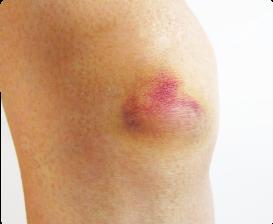 押す 痛い と しこり 股関節